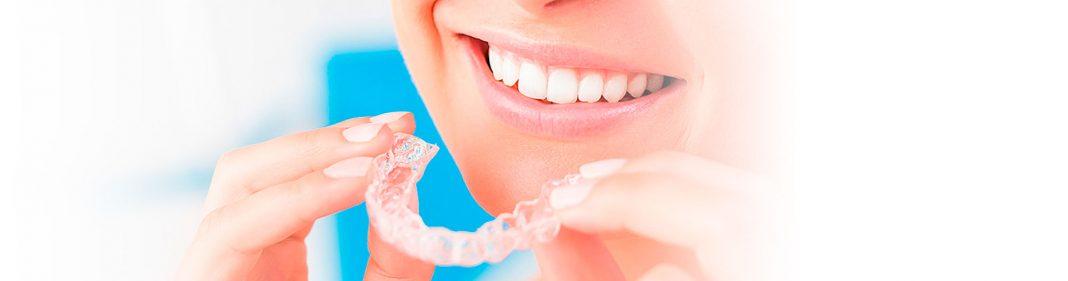 Invisalign quironsalud dental